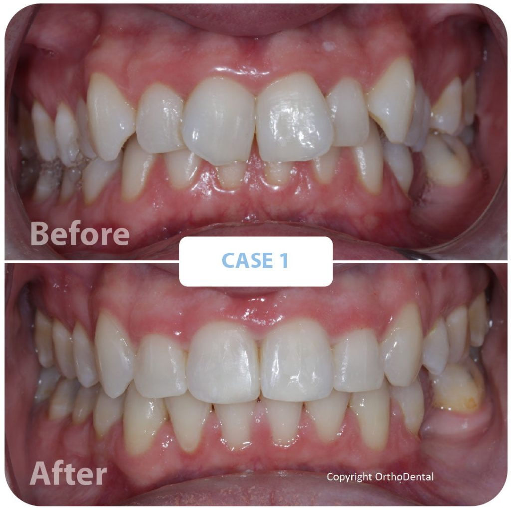 before and after, teeth, dental health, orthodontic treatment