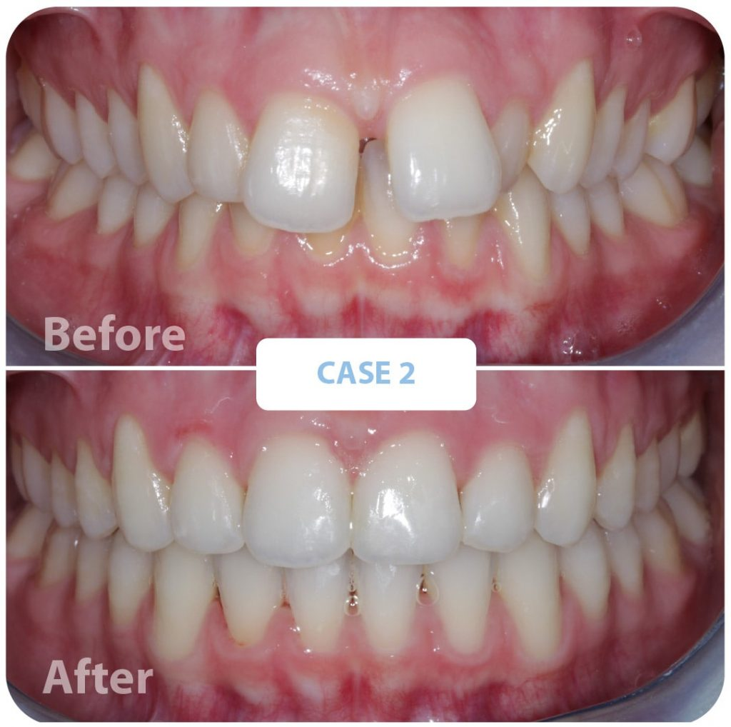 before and after, teeth, orthodontic treatment, dental health, orthodonty