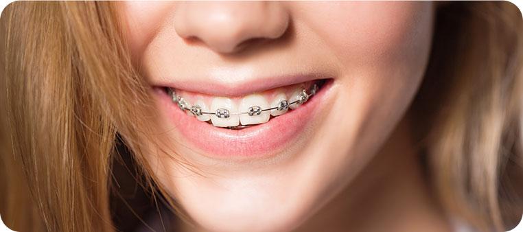 braces laois, orthodontic treatment