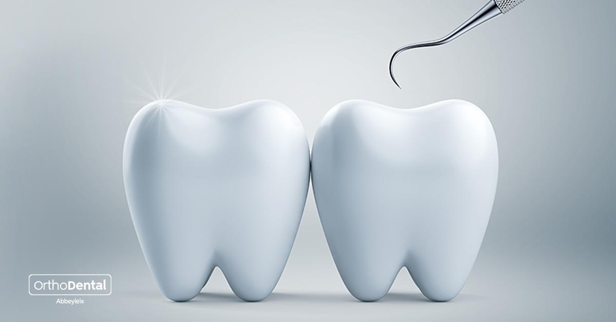 Deep cleaning teeth