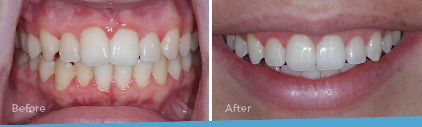 Before and After, Invisalign treatment.